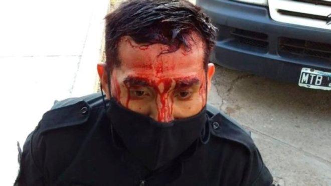 Uno de los policías heridos en Salta